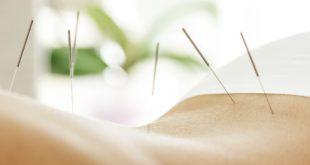 kobiece plecy z wbitymi igłami do akupunktury